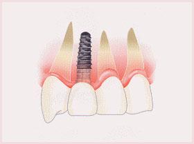 前歯を一本失った場合