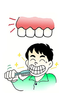 歯周病発見のポイント