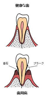 歯垢からしのびよる歯周病